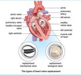 Heart Surgery Types