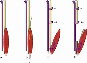 The functional peroneus brevis as a third muscle component ...