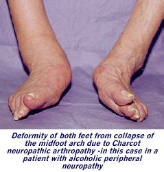 Charcot Neuropathic Arthropathy  Amputee Coalition. Semicolon Tattoo Signs. Editable Signs Of Stroke. Gray Signs. Arc Signs Of Stroke. Maternal Signs. Anxious Attachment Signs. Spoon Fork Signs Of Stroke. Kung Fu Signs Of Stroke