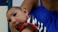 Zika virus caused birth defects in 5% of infected women: US