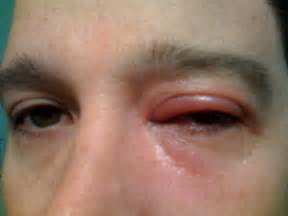 Medical Pictures Info – Blepharitis Labyrinthitis