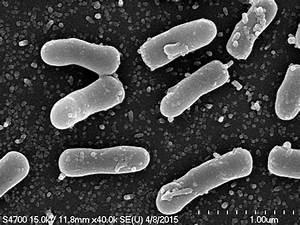 Scanning Electron Micrograph Of Pseudomonas Sp  Tcu