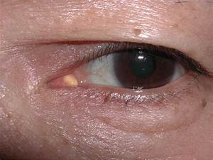 A Mass Of The Caruncle In Left Eye