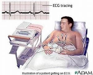 Rn Medical Chart Review Jobs Electrocardiography Ecg Nursing Crib