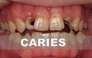 Remedios caseros para la caries dental Como combatir la caries en casa YouTube