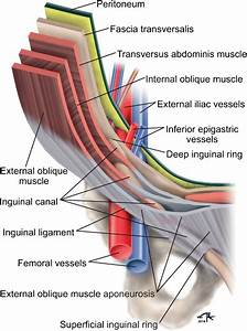 The Challenging Sonographic Inguinal Canal Evaluation In