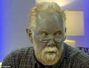 Man turns blue after he self-medicates for a skin condition