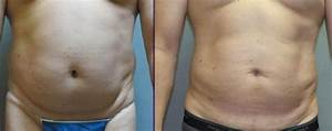 Before and After Smartlipo for Men | QnA Cosmetic Surgery