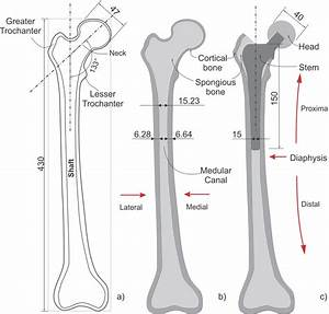 Healthy Femur  Hf  And The Femur With Prosthesis  Fp   A