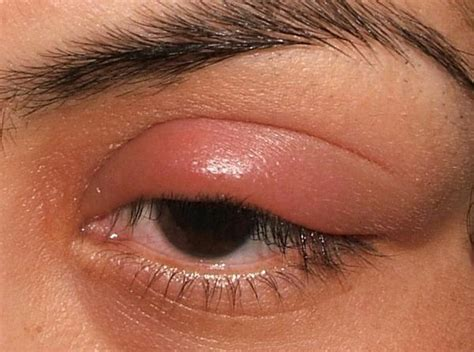 eyelid inflammation   didnt