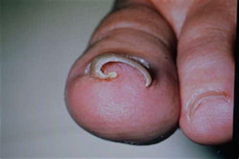 nail problems kew foot clinic