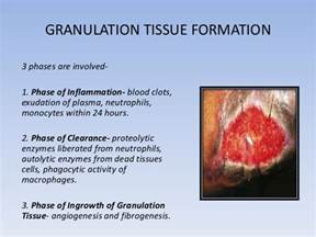Granulation Tissue Wound Healing