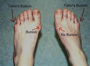 Tailor U0026 39 S Bunions Are Similar To Standard Bunions But Are