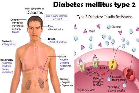 diabetes mellitus    symptoms  type  diabetes