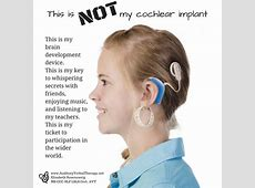 FREE POSTER This Is NOT My Cochlear Implant Auditory