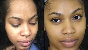 How To Get Rid Of Acne  Breakouts And Face Rashes