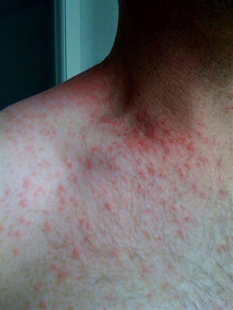kp   diseases   bumps  skin keratosis