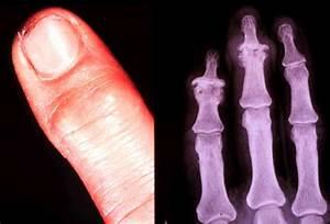 reuma in benen