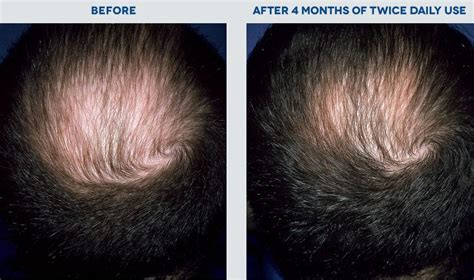 How Long Before Rogaine Stops Hair Loss
