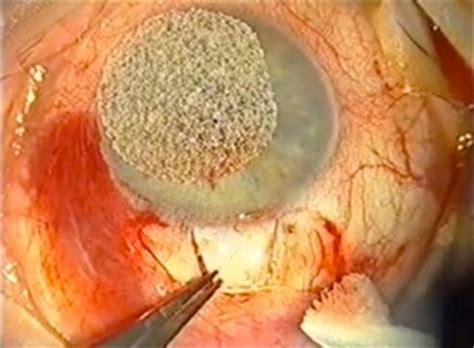 glaucome tt chirurgical