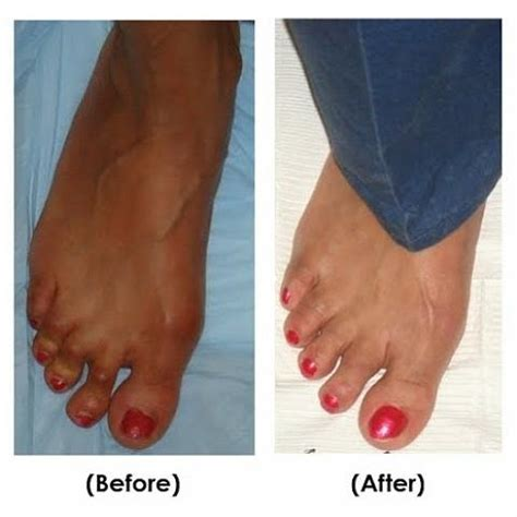 hammertoe before and after procedure painting by sean ravaei
