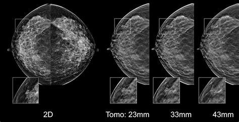 Tomosynthesis Brooklyn Ocean Radiology