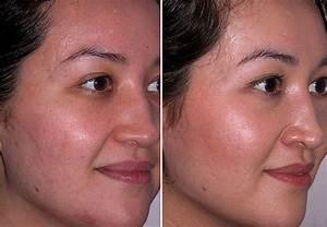 Мезороллер для лица от морщин отзывы фото до и после