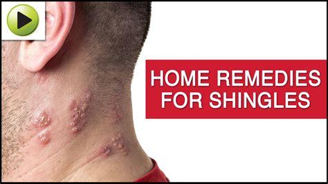 natural treatment for the skin disease shingles disease
