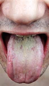 Candidiasis Of Tongue (Partially Treated) Thrush