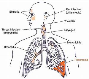 Pneumonia And How To Treat It With Effective Home Remedies