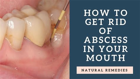 how to get gum how to get rid of abscess in your mouth natural remedies youtube