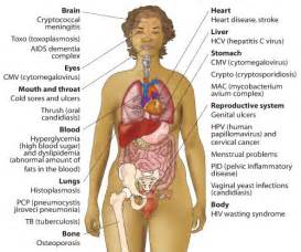 Where opportunistic infections and other conditions affect a person ...  Alzheimer's Disease Human Papillomavirus Infection