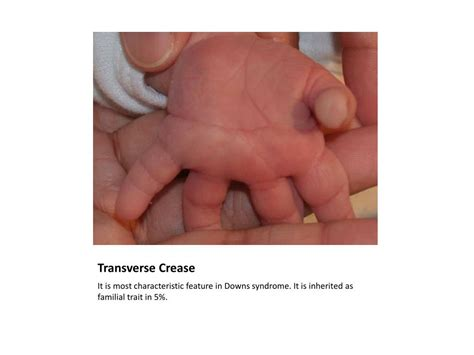 Ppt Newborn 6 Week Check Powerpoint Presentation Id