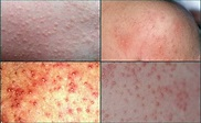 15 Effective Home Remedies to Treat Heat Rash Quickly ...