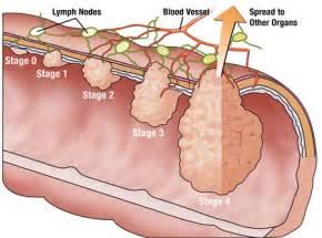 Colon Cancer Colorectal Cancer