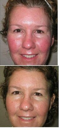 Soothe transforms a ruddy complexion! | Rodan and fields