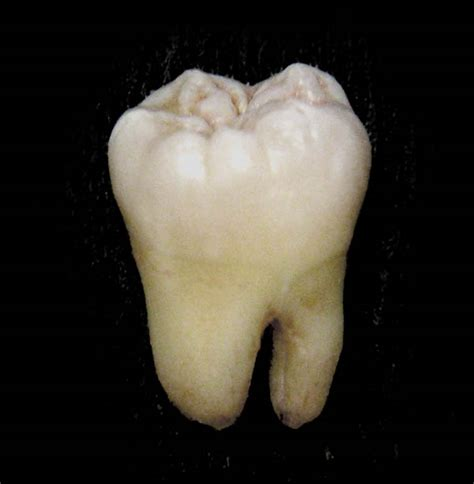 Diagram Of Right Rear Molar by Molar Tooth