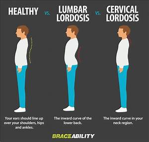 What is lordosis? This condition is commonly known as ...