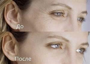 Масло оливковое против морщин под глазами