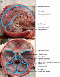 Dural Venous Sinuses