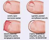Болит горло и болят суставы пальцев рук