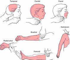 Self Defense Pressure Points Chart Pressure Points A Point Of Extreme Sensitivity To
