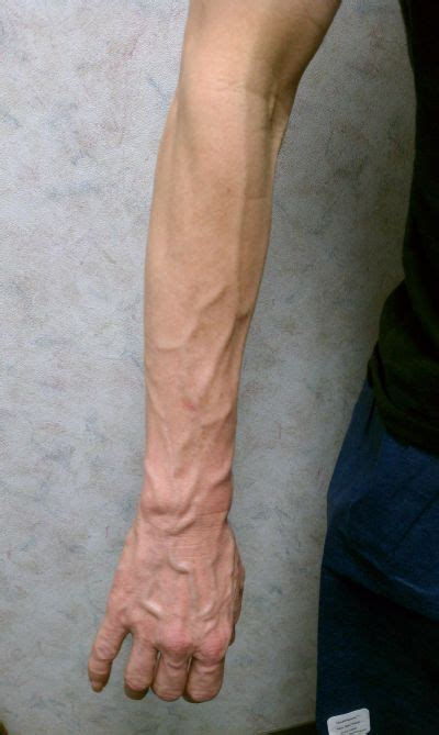 How To Get Rid Of Varicose Veins In Your Arms