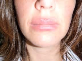 Allergic Reaction Rash On Lips