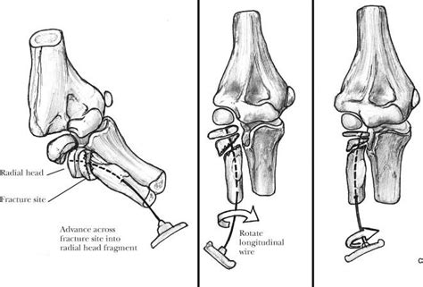 Pediatric Elbow Fractures   Musculoskeletal Key
