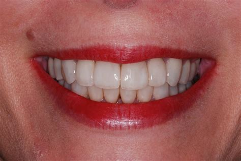 recession coverage  veneers loveperio