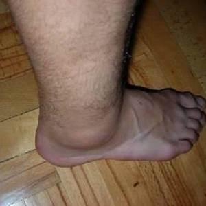 Как вылечить бородавку на ногах