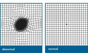Macular Degeneration - Eye Conditions
