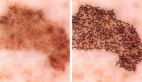 Melanoma Images Researchers Develop Automated Melanoma Detector For Skin