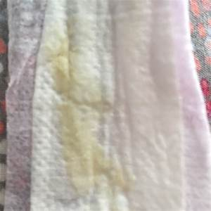 Yellow Discharge At 41 Weeks Iu002639ve Had White Discharge But